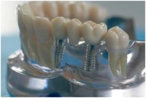 Имплантация зубов челюсть