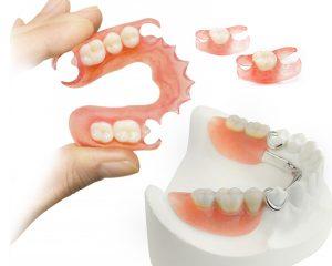 Изготовление съёмных зубных протезов