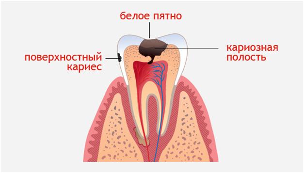Образование кариеса на зубе