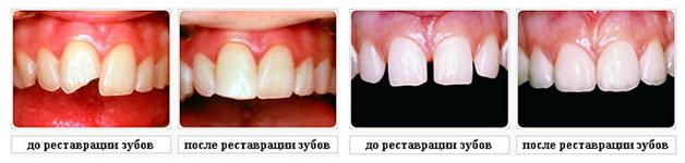 Реставрация зубов в Краснодаре
