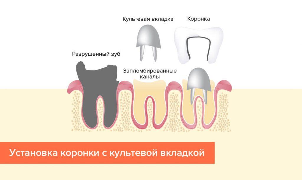 Восстановление зуба с использованием культевой вкладки