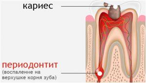 кариес и периодонтит