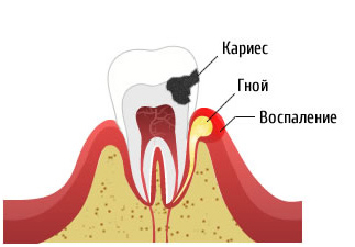 кариес с хронические периодонтитом