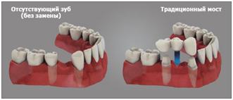 крепление мостовидного протеза к зубам