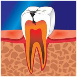 зуб с кариесом и пульпитом