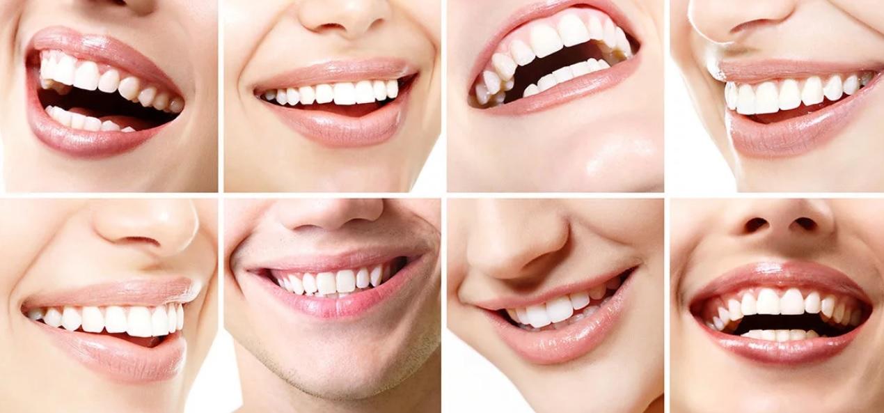 Дентикюр - профессиональная чистка зубов